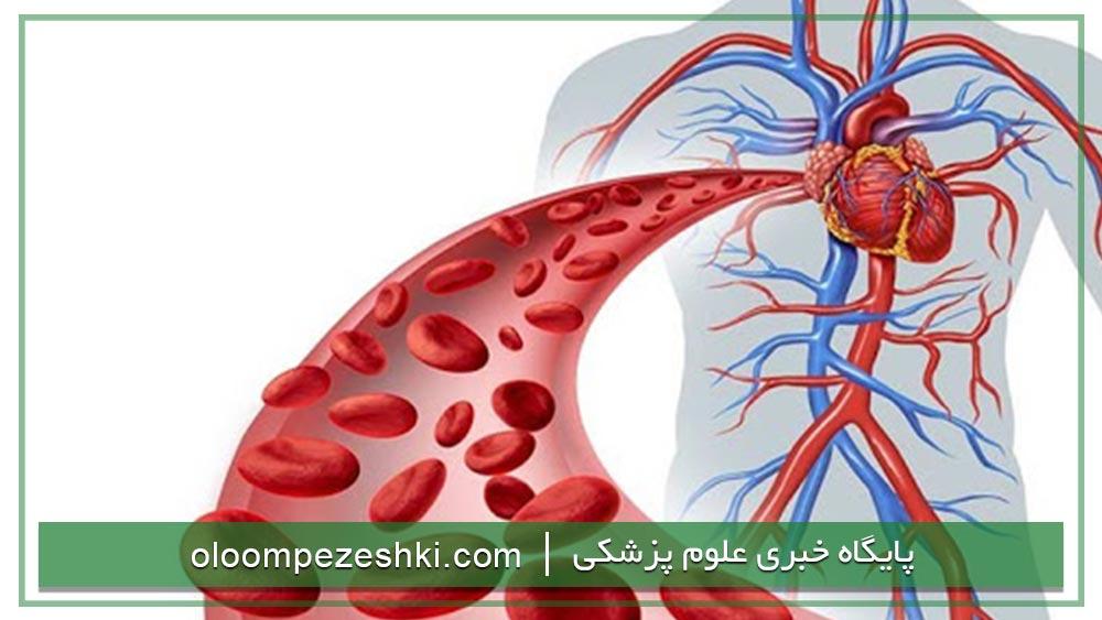 ارشد تکنولوژی گردش خون پرفیوژن